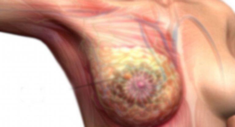 स्तन क्यान्सरले छटपटिँदै पुम्फा सहयोग गर्न आग्रह